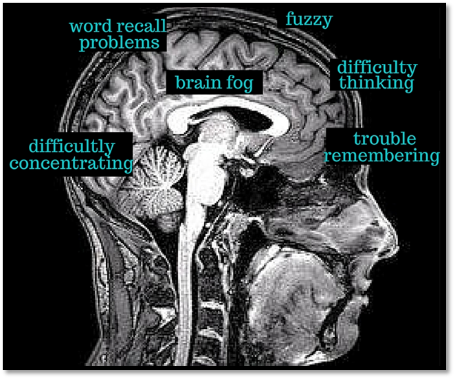 Image result for cognitive disorder